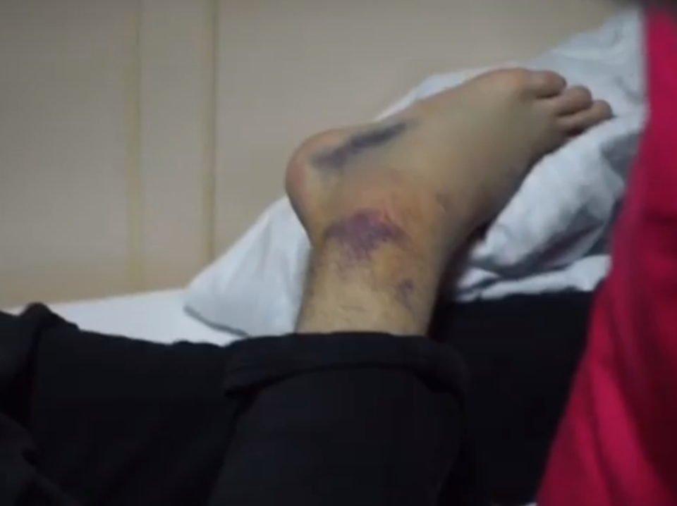 Нога Димы Билана после травмы